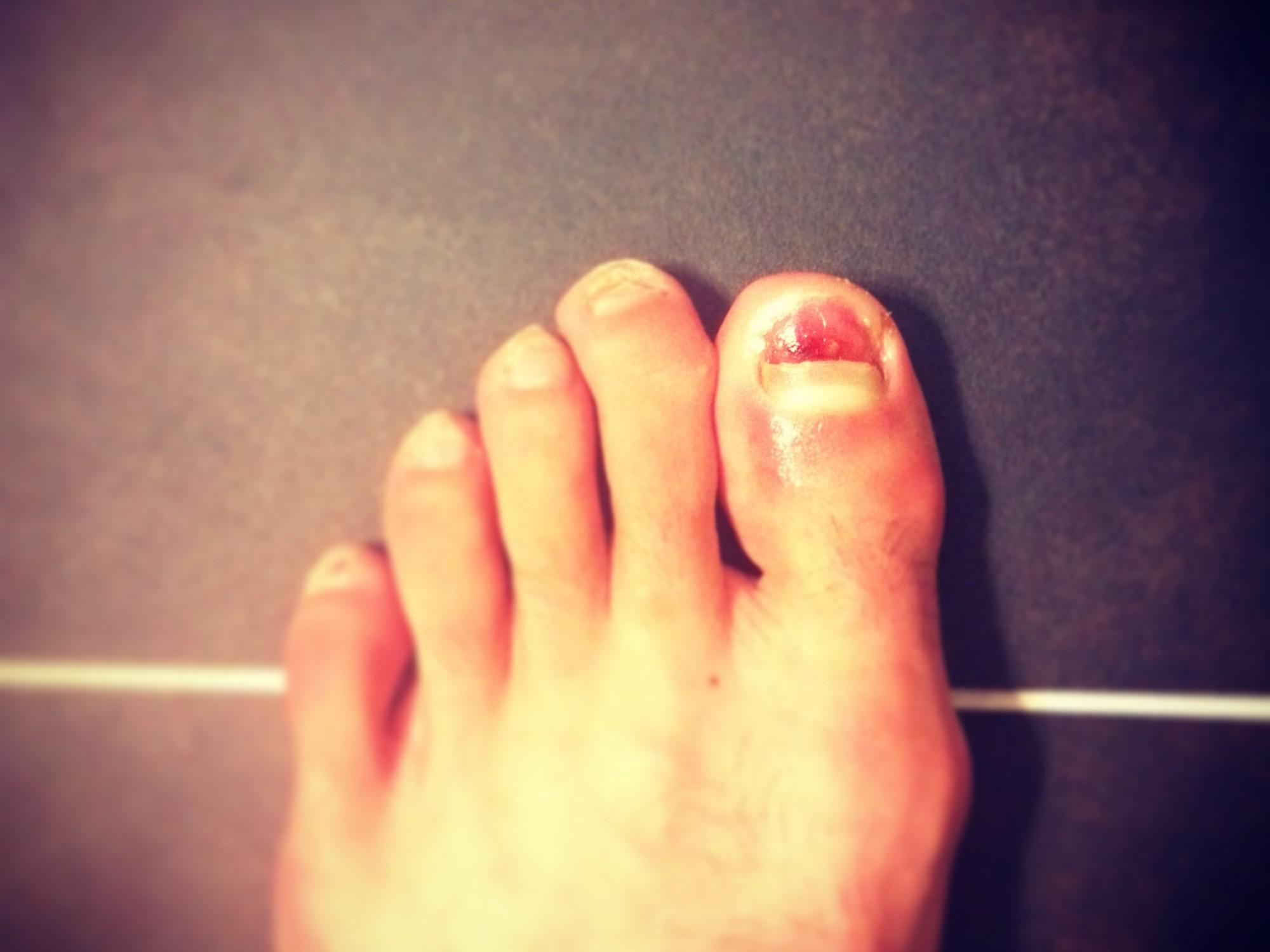 5 Steps to Safely Remove Dead Toenails – Adam Condit – Run Blog