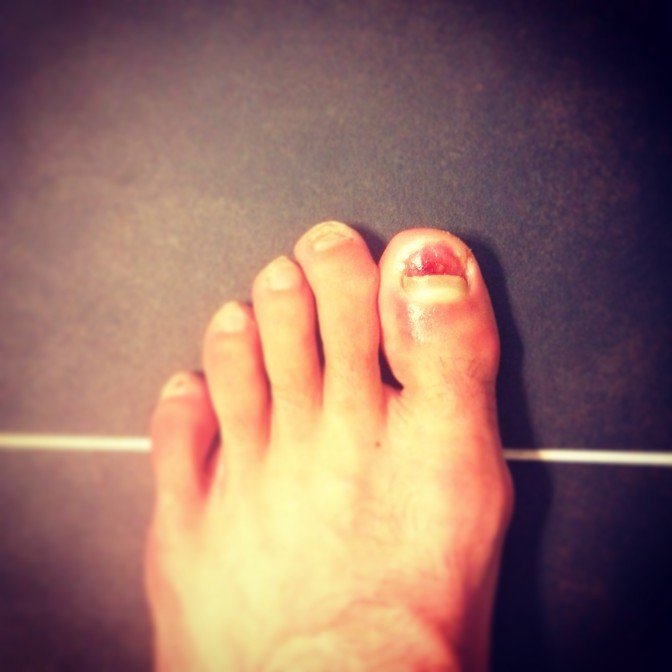 5 Steps to Safely Remove Dead Toenails
